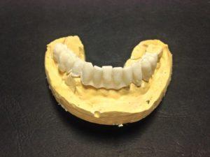 denti | Studio Dentistico a Pieve di Cento | Studio Dentistico Banzi