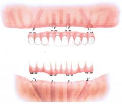 implantologia-padova